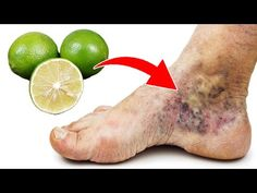 Health Tips, Youtube, Projects To Try, Medical, Fitness, Origami, Varicose Veins, Health And Wellness, Home Remedies