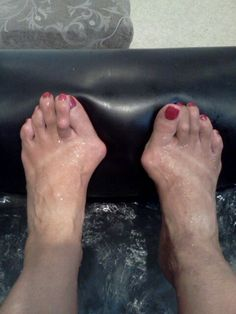Womens Shoes For Hammer Toes And Bunions