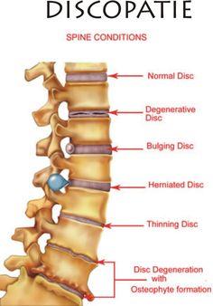 Normal spinal disc versus various pathologies of the intervertebral disc