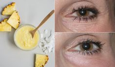 Under eye wrinkles are probably the first thing we see when we started worrying about our age. As we age, our skin loses elasticity and its ability to Under Eye Mask, Under Eye Wrinkles, Prevent Wrinkles, How To Grow Eyebrows, Alcohol Free Toner, Acne Scar Removal, Organic Makeup, Beauty Recipe, Perfect Skin