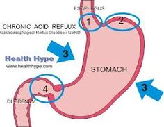 Acid reflux is the backward flow of stomach acid into the esophagus — the tube that connects the throat and stomach. Acid reflux is more specifically known as gastroesophageal reflux.
