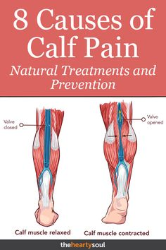 Sore calves are not fun. These are some of the reasons why you may be experiencing muscle tightness or cramps in your calf. Plus natural ways to treat and prevent sore calf muscles. Calf Muscle Cramps, Stretch Calf Muscles, Sore Muscle Relief, Calf Pain, Leg Pain, Calf Muscle Workout, Cramp In Calf, Massage, Health And Wellness