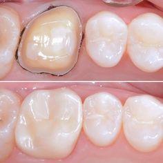 Case from @gilbert_t_gauthier - Final crown delivery on a cracked molar. Monolithic zirconia. . DoubleTap & Tag a Friend Below Follow @dentistry_forumus if you love Update pictures everyday To be Featured Tag your love Thank you ! #dentistry #dentist #odontologia #dental #odonto #tooth #dentista #odontolove #odontoporamor #teeth #ortodontia #dentalstudent #dentalhygiene #odontologo #orthodontics #prosthodontics #oralsurgery #dentalassistant #odontologiaestetica #implant #dentalschool #odontolove Dental Humor, Dental Hygiene, Local Jobs Hiring, Restorative Dentistry, Dental Assistant Jobs, Dental Procedures, Dental Crowns, Oral Surgery, Cosmetic Dentistry