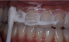 Toxins In Body A Dentist Friend Told Me How To Eliminate Tartar, Gingivitis And Whiten My Teeth In 4 Steps With This Homemade Recipe - Eating Building Gum Disease Treatment, Teeth Whitening Diy, Emergency Dentist, Toxic Foods, Cold Home Remedies, Teeth Care, Teeth Cleaning, Dental Care, Baking Soda