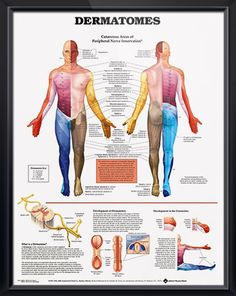 Dermatomes anatomy poster defines dermatomes and illustrates cutaneous areas of peripheral nerve innervation. Neurology chart for doctors and nurses.