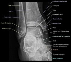 Radiograph (X-ray) of the ankle : anatomy on an anterior view showing tibia, fibula, talus, lateral and medial malleolus.