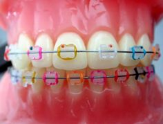 Showing the different color options paired with ceramic brackets