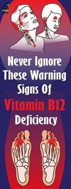 Secret Health Remedies Never Ignore These Warning Signs Of Vitamin Deficiency Herbal Remedies, Health Remedies, Natural Remedies, Health And Beauty, Health And Wellness, Health Fitness, Health Care, Health Goals, True Health