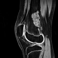 Non-ossifying fibroma: distal femur | Radiology Case | Radiopaedia.org