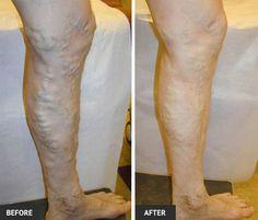 funcționarea pe picioare cu recenzii varicose vene final cu vene varicoase