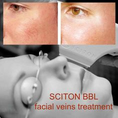 Sciton Broad Band Light (BBL).Photofacial-A clear, radiant complexion is something you might want. But even with the most meticulous skincare regimen, blemish-free skin can be difficult to achieve. Photofacial helps to reduce the appearance of some of the most common skin imperfections. Brown spots, broken capillaries, dull and uneven skin can be effectively treated. This minimally invasive procedure reduces signs of skin aging such as wrinkles, fine lines and age spots.