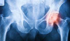 Choroba zwyrodnieniowa stawów – sposoby na uniknięcie wózka inwalidzkiego