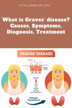 What is Graves' disease? Causes, Symptoms, Diagnosis, Treatment Stay Healthy, Healthy Tips, Enlarged Thyroid, Graves Disease, Red Skin, Thyroid Gland, Mouth Watering Food, Hemp, Healthy Lifestyle