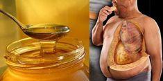 10 důvodů, proč konzumovat med každý den