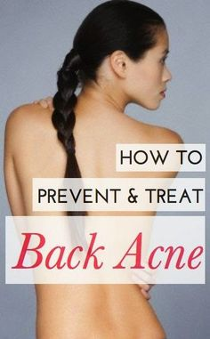 How To Prevent And Treat Back Acne.   Medi Villas