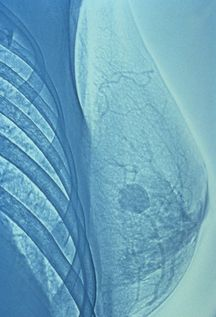 Breast Cancer Awareness: When to get a mammogram and a few simple steps to lower your breast cancer risk.