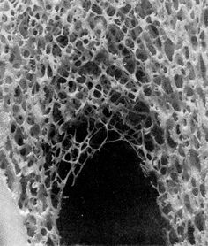 CROSS SECTION OF A BONE THAT SHOWS THE SUBSTANIA SPONGIOSA. THE DENSITY OF THIS VAULTLIKE STRUCTURE FOLLOWS THE FORCES THAT ACT UPON THE BONE