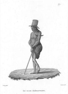 Man with Leprosy | Flickr: Intercambio de fotos