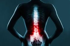 Spinal cord stimulation is a safe, effective drug-free treatment for chronic pain, experts say Virus Del Herpes Simple, Spondylolisthesis, Desk Workout, Lose Arm Fat, Spine Health, Ankylosing Spondylitis, Stem Cell Therapy, Spinal Cord Injury, Chiropractic Care