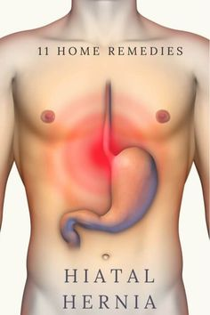Hernia   <pinner_seo_name>'s collection of 80+ hernia symptoms ideas in 2020