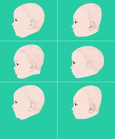 There are ways to prevent baby from developing flat head syndrome. Find out what causes plagiocephaly and treatments to fix the problem.