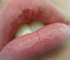 To cure cracked, chapped lips at initial stage is very necessary as a little ignorance can lead to large, painful, swollen cracks in lips. Homemade remedies are very helpful for making your lips soft.