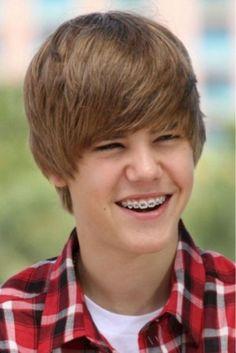 dental throwback thursday - Justin Bieber braces