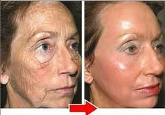 Layer Of Skin To Cover Up Wrinkles And Blemishes Layers Of Skin, Hyaluronic Acid, Anti Wrinkle, Your Skin, Serum, Anti Aging, Fashion Beauty, Cover Up, Face