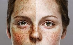 How to get rid of sunspots: 19 best remedies (OTC & Natural) – Beautywised Sunspots On Face, Cosmetic Bottles, Cosmetic Storage, Natural Disasters, How To Get Rid, Jewellery Display, Freckles, Makeup Cosmetics, Remedies