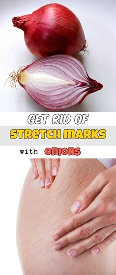 Get rid of stretch marks with onions - RealBeautyTips.net