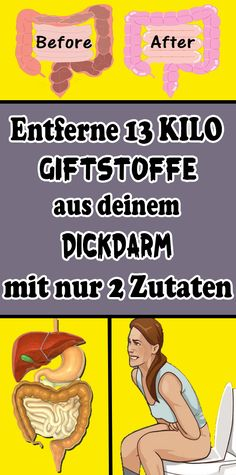 Entferne 13 Kilo Giftstoffe aus deinem Dickdarm mit nur 2 Zutaten Remove 13 kilos of toxins from your colon with only 2 ingredients Strength Training For Beginners, Workout Routines For Beginners, Legs Up The Wall, Colon, Workout For Flat Stomach, Healthy Food To Lose Weight, Health Trends, Blog Love, Diet Breakfast