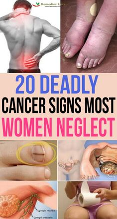 health and remedies: Deadly Cancer Signs Most Women Neglect Lung Cancer Causes, Signs Of Lung Cancer, Cancer Sign, Liver Cancer, Ovarian Cancer Tattoo, Breast Cancer, Cervical Cancer, Crunches, Ongles