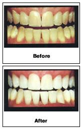 Easy Tips To Whiten Your Teeth Overnight  Whitening teeth can be inconvenient and expensive. However, there are plenty of methods you can try out that are quick and cost-effective. And the best part: They actually work! These tips will help you determine how you can whiten your teeth easily and quickly. Try to stay away from coffee,...    Read the rest of this entry » http://teethreview.com/teeth-whitening/easy-tips-to-whiten-your-teeth-overnight-3/