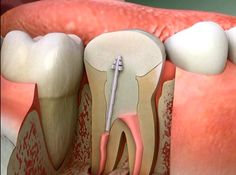 How Root Canals Severely Affect Your Healthhttp://www.collective-evolution.com/2014/03/06/how-root-canals-severly-affect-your-health/
