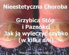 zdrowie.hotto.pl-grzybica-stop-i-paznokci-jak-wyleczyc-w-kilka-dni