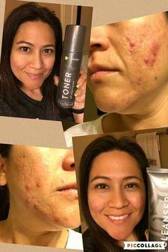 It works - facial toner