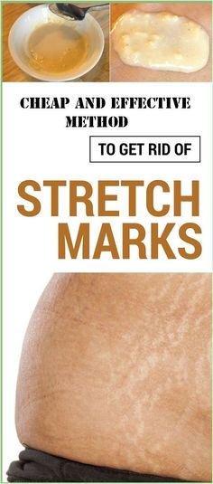 Cheap and effective method to get rid of stretch marks in a week Reduce Stretch Marks, Stretch Mark Removal, Stretch Mark Tattoo, Stretch Mark Remedies, Health Remedies, Home Remedies, Natural Remedies, Arthritis Remedies, Natural Treatments