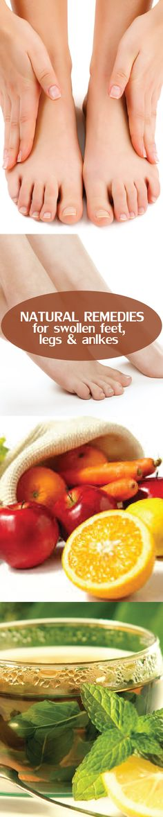 Top Natural remedies for Swollen feet, legs and ankles