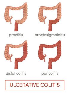 Ulcerative colitis is a form of IBD.