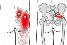 Fitness Workouts, Easy Workouts, Fitness Tips, Siatic Nerve, Nerve Pain, Natural Beauty Tips, Health And Beauty Tips, Leg Pain, Back Pain