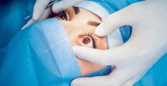 The Different Types of Corrective Eye Surgery