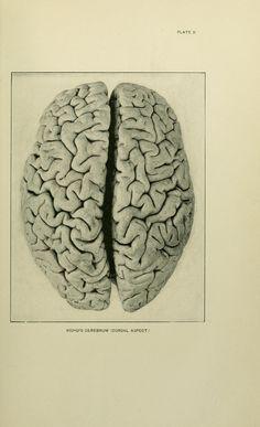 Eskimo Brain, 1901