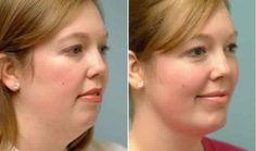 Des exercices incroyables afin de resserrer votre peau et vous débarrasser de votre double menton – Family santé
