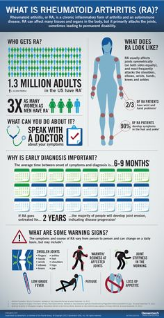 What is Rheumatoid Arthritis - I had major symptoms for 6 years before seeing a doctor. Don't wait!!!
