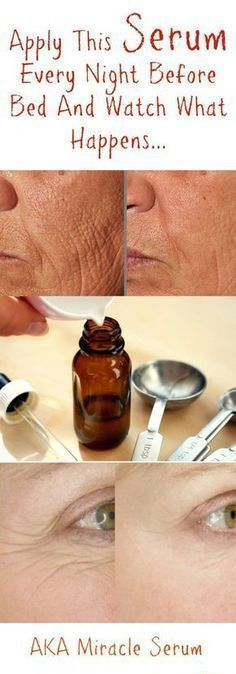 DIY Anti Aging Cream For Wrinkles, Crow's Feet, and Fine Lines – Medi Idea