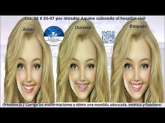 Ortodoncia y blanqueamiento Orthodontics, Whitening, Blog, Health, Tooth Bleaching, Blogging