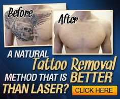 Laserless Tattoo Removal without pain and for few bucks!  http://bit.ly/tatto-removal