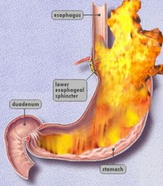 Herbal Remedies For Acid Reflux - Natural Treatments & Cure For Acid Reflux | Home Remedies