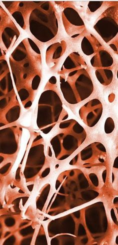 Human shin bone SEM