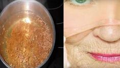 Homemade botox without a syringe!